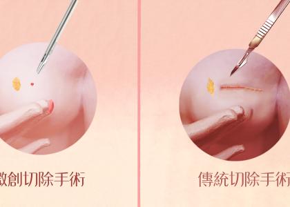 【衛教馨知】乳房纖維囊腫變化要不要切除?